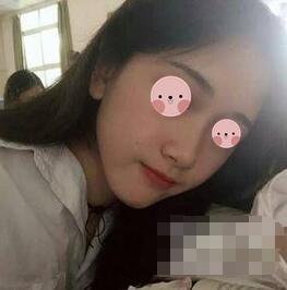 广州艺美整形鼻综合案例