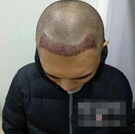 北京丽都整形发际线种植案例