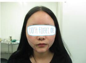 自贡西婵整形面部吸脂案例
