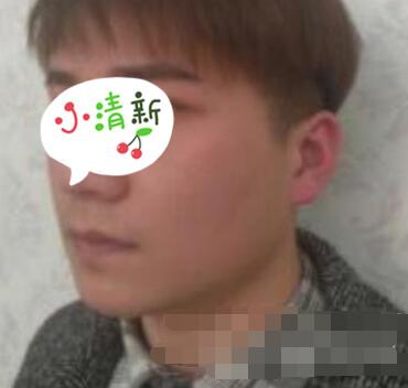 北京健宫整形肉毒素瘦脸案例 术后30天脸型好看很自然哟