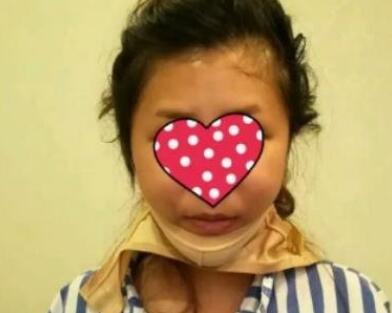 杭州人民医院整形肉毒素瘦脸案例 术后我的脸型变得美美哒