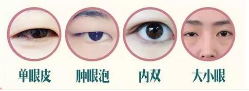 """人生如戏,全靠""""眼""""技!广州双眼皮整形的价格参考"""