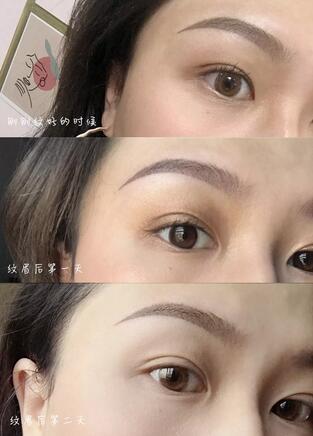 纹眉有什么好处?广州纹眉的价格参考+案例效果+过程