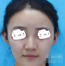 哈医大一院整形隆鼻案例 术后自然高挺无痕迹