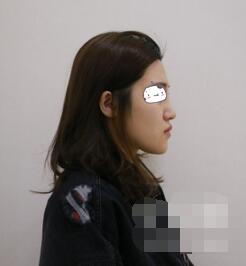 北京华韩整形鼻综合案例 鼻子挺翘了,看着人精神面貌都好很多
