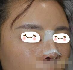 武汉五洲整形假体隆鼻案例 改善我的塌鼻子,现在小巧挺拔
