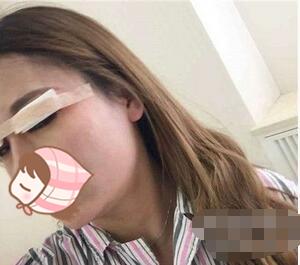上海雅丰整形切开双眼皮案例 女人就是要让自己漂漂亮亮哒