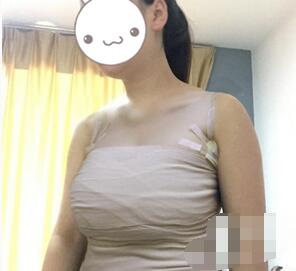 东莞华美整形假体隆胸案例 做完胸感觉腰都细了一大圈