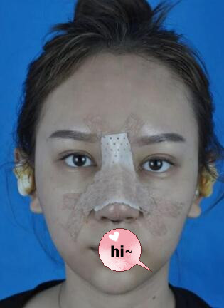 上海九院整形蒜頭鼻矯正案例 術后106天鼻子恢復好看 追求者多了