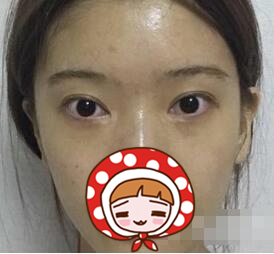 丹东诗莉花整形双眼皮案例 眼神没有那种奸诈狭隘的感觉了