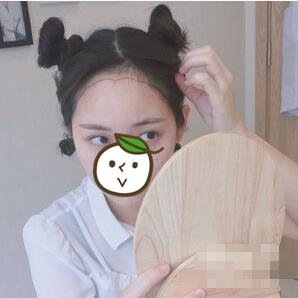 北京壹加壹整形发际线种植案例 三个月的模样,头发又长长一丢丢