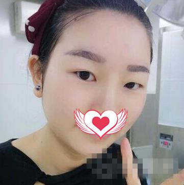 承德�h莱美整形双眼皮案例 恢复得很快,无疤痕
