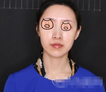 武汉美博士整形隆鼻案例 术后老公说气质提升啦 哈哈哈哈