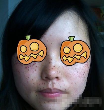 徐州三院整形祛斑案例 术后斑终于不见啦 脸上干净细嫩