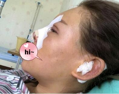 北京加减美整形黄寅守医生隆鼻案例 术后鼻子给颜值加分了哟