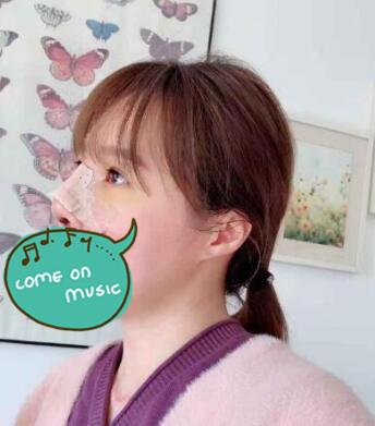 上海九院整形隆鼻案例 术后鼻子逆袭成为精致的小仙女 招来桃花运