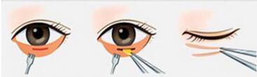 一个小小的眼部细节,让你看着老了几岁!武汉祛眼袋的价格