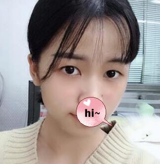 北京美之星整形解永学医生双眼皮案例 术后眼睛会说话得闪亮