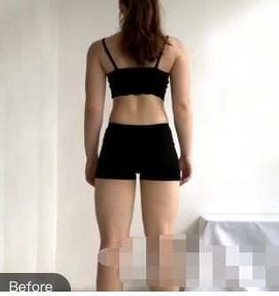 宁波壹加壹整形郭光烨医生大腿吸脂案例 术后恢复30天 腿瘦了很多