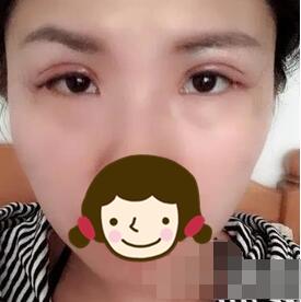 泰兴柏丽整形双眼皮案例 3个月的心路历程分享大家