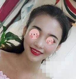 北京美莱鼻综合整形案例 没有白白折腾吧,收获了美鼻