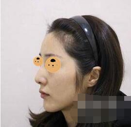 北京南加整形鼻综合案例 自拍,正面侧面照都非常的美丽