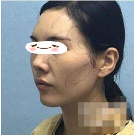 北京东方瑞丽整形自体脂肪填充面部案例 显年轻许多了