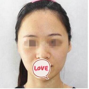 吉林铭医整形隆鼻案例 术后鼻子变得很好看 很多女孩子献殷勤耶