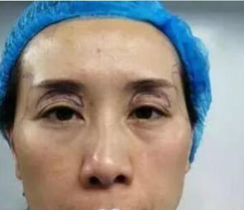 青岛华韩整形自体脂肪丰眼窝案例 术后肌肤都嫩很多了 老公都喜欢
