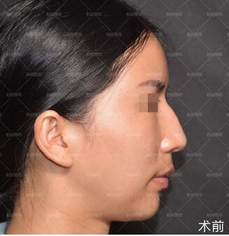 北京柏丽整形李劲良医生驼峰鼻矫正案例 脸部线条都柔和了很多