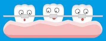 牙齿矫正有年龄限制吗?武汉牙齿正畸矫正的价格参考