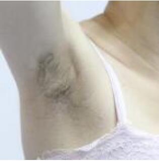 北京艺星整形激光脱毛案例 术后赶走不必要的尴尬 肌肤变得光滑了