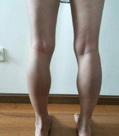 海南兰颜慧整形瘦小腿案例 术后70天展示我又细又长的美腿