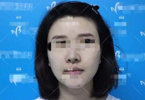 上海首爾麗格整形丁小邦博士生長因子取出案例