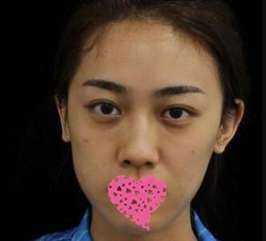 自貢西蟬鈞閣整形面部除皺案例 面部緊致提升能夠讓女性重獲年輕