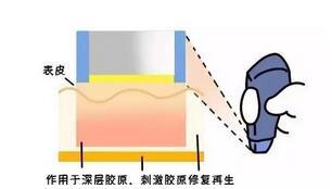 热玛吉的功效有多大?杭州热玛吉的价格大概是多少?