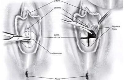 阴道再造术有哪些方法
