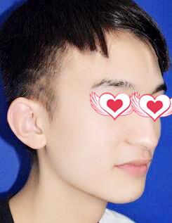 上海天大整形驼峰鼻矫正案例 鼻子轮廓超好看