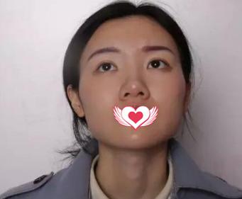 石家庄面容管家整形鼻翼缩小+鼻尖成形术案例   见证婷婷的蜕变