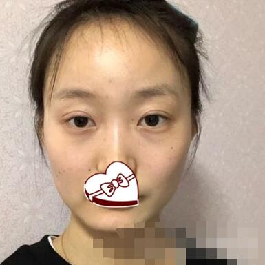 北京艺美整形王东医生脂肪填充太阳穴案例 术后脸型变得很立体