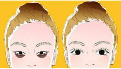 激光祛除黑眼圈有效吗?风险大不大?