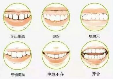 """不要做开口颜值就脆了的""""帅哥or美女"""",论牙齿矫正的重要性"""