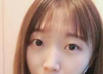 北京华韩整形双眼皮案例  打造专属你的媚眼