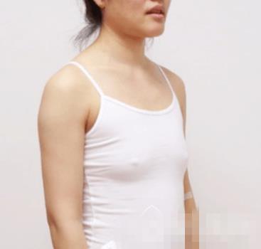 云南华美美莱整形自体脂肪丰胸案例 胸部饱满有弹性 穿啥都好看