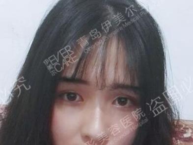 上海伊莱美整形双眼皮案例  眼睛恢复靓丽神彩