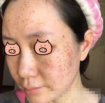 南京维多利亚整形皮秒祛斑案例 脸上小黑斑不见啦,变得白白嫩嫩