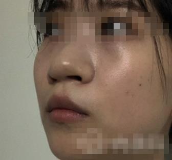 芜湖伊莱美整形玻尿酸隆鼻案例 我终于也拥有网红翘鼻啦