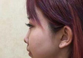 重庆美莱整形鼻整形案例  拥有挺拔俊美的鼻子