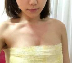 北京丽都整形隆胸案例  拥有性感的胸部