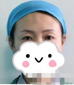 北京华韩整形双眼皮修复案例 修复后的眼睛,整体多几分女神气质